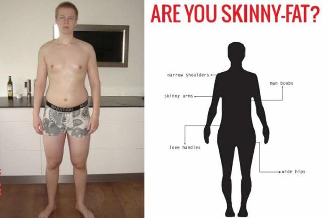 tạng người skinni fat